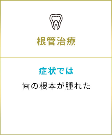 五反田駅前歯医者 根管治療