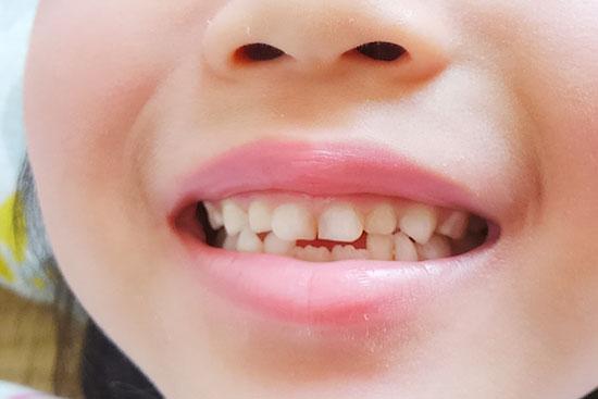 五反田駅前歯医者 小児歯科 乳歯の生える時期