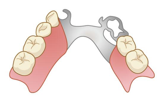 五反田駅前歯医者 入れ歯・義歯 部分入れ歯