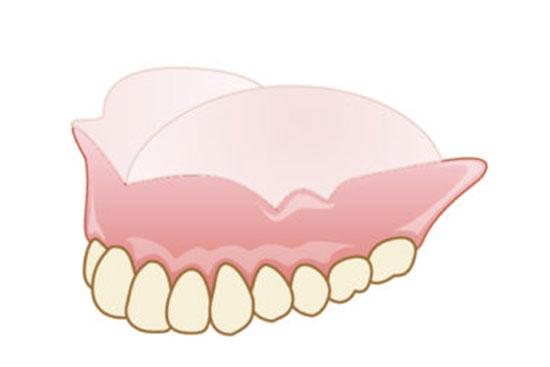 五反田駅前歯医者 入れ歯・義歯 総入れ歯