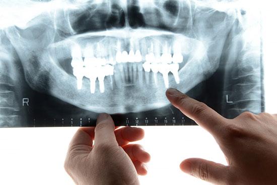 五反田駅前歯医者 インプラント治療を行えない場合