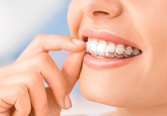 五反田駅前歯医者 矯正歯科 マウスピース型矯正装置