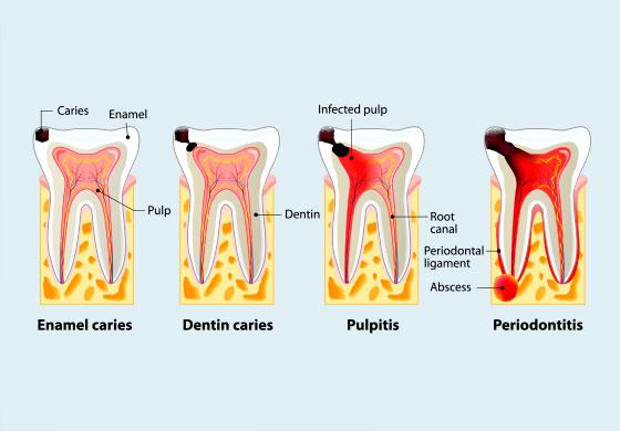 五反田駅前歯医者 予防歯科 虫歯のチェック
