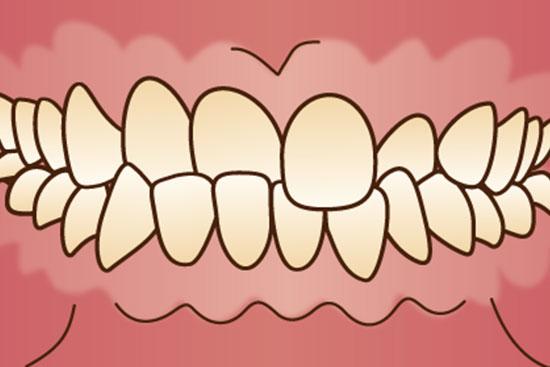 五反田駅前歯医者 顎関節症 不正咬合