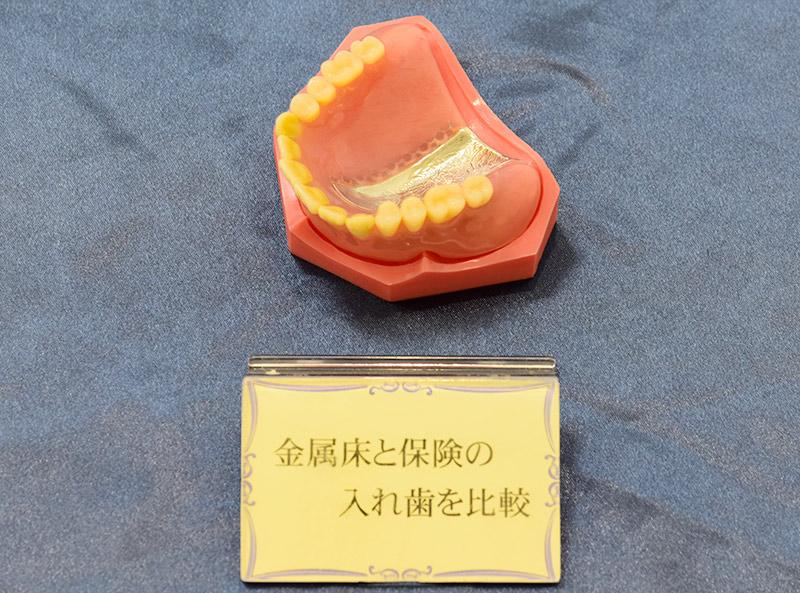 五反田駅前歯医者 金属床義歯