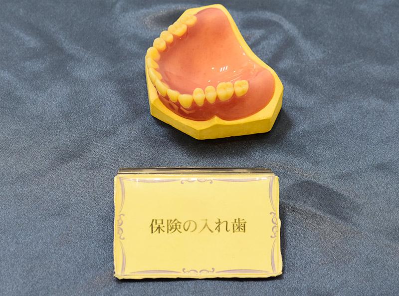 五反田駅前歯医者 保険の入れ歯